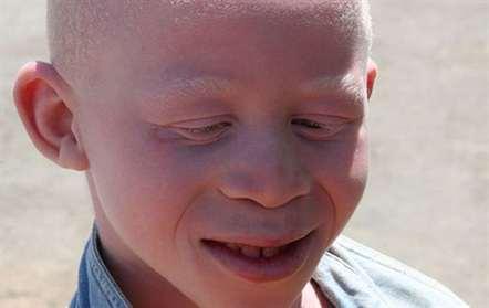 Treze albinos assassinados em 2015